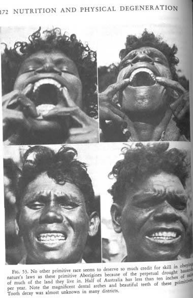 Aborigjene me dhembe te shendetshem
